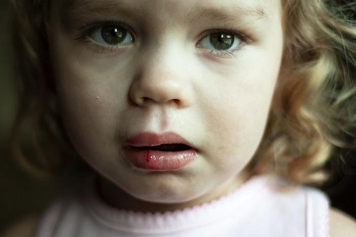 Ребенок разбил губу изнутри опухла что делать комаровский — Детки-конфетки