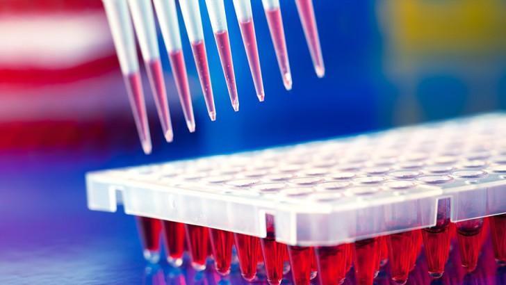 Расшифровка общего анализа крови rdw sd