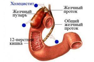 Хронический холецистит у детей