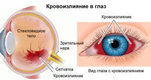 У ребенка полопались капилляры в глазу