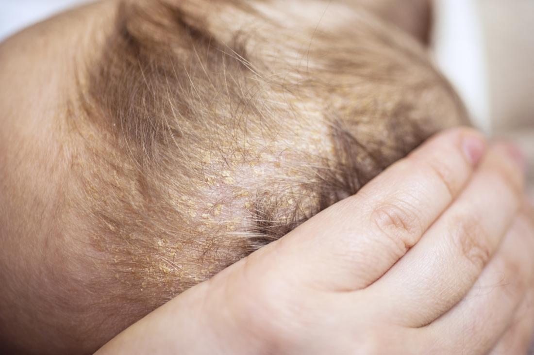 Болезни кожи головы у детей