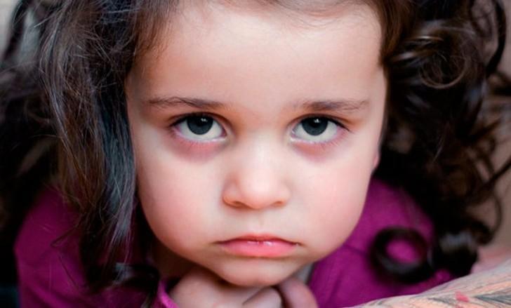 Покраснение под глазами у ребенка комаровский